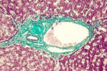 Hepatitis Autoimmune